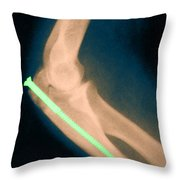 Broken Arm With Metal Pin, X-ray Throw Pillow by Science Source