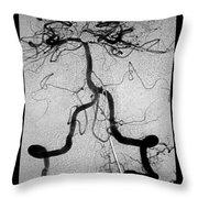 Cerebral Angiogram Throw Pillow