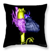 Color Enhanced 3d Cta Of Heart Throw Pillow