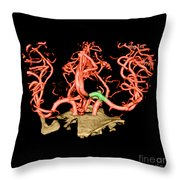 Ct Angiogram Of Aneurysm Throw Pillow