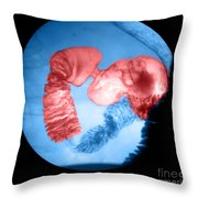 Distal Stomach And Duodenum Throw Pillow