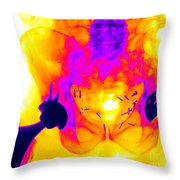 Double Hip Replacement Throw Pillow