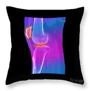 Knee Showing Osteoporosis Throw Pillow