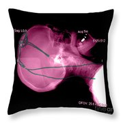 Lateral X-ray Of Deep Electrodes Throw Pillow