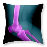 Lateral X-ray Of The Knee Throw Pillow