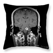 Mri Of Acute Ms Throw Pillow
