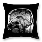Mri Of Alcoholism Related Vermian Throw Pillow