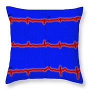 Normal Ecg Throw Pillow