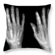 Normal Hand Throw Pillow