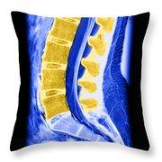 Normal Lumbar Spine Throw Pillow
