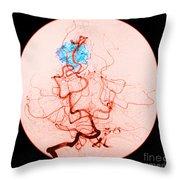 Occipital Lobe Avm Throw Pillow