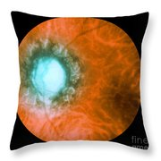 Retina Infected By Syphilis Throw Pillow