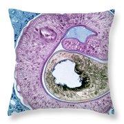 Schistosoma Mansoni Throw Pillow