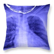 X-ray Of Enlarged Heart Throw Pillow