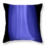 X-ray Of Infants Arm Throw Pillow