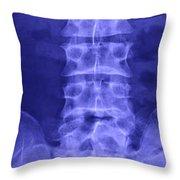 X-ray Of Lower Lumbar Spine Throw Pillow