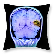 Mri Of Brain Avm Throw Pillow