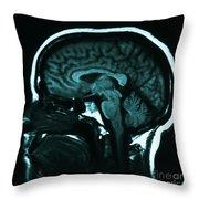 Mri Of Normal Brain Throw Pillow