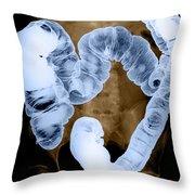 Normal Double Contrast Barium Enema Throw Pillow