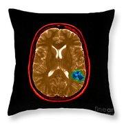 Mri Of Brain Avm Throw Pillow