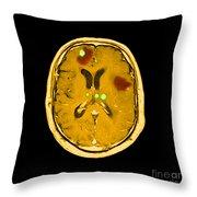 Brain Tumors Throw Pillow