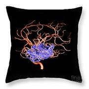 3d Angiogram Of Temporal Lobe Avm Throw Pillow