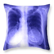 Chest X-ray Of Female Throw Pillow