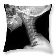 Human Skull And Cervical Spine Throw Pillow