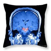Mri Brainstem Cavernous Malformations Throw Pillow
