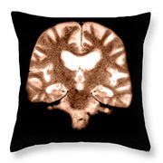 Mri Of Brain With Alzheimers Disease Throw Pillow