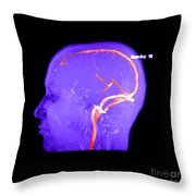 Normal Venous Anatomy Throw Pillow