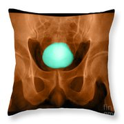 Normal Xray Of Urinary Bladder Throw Pillow