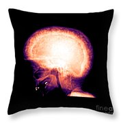 Pagets Disease Throw Pillow