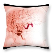 Serpentine Aneurysm Throw Pillow