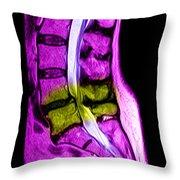 Spondylolisthesis & Canal Stenosis Throw Pillow