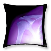 Tendinitis Throw Pillow by Medical Body Scans