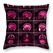 Mri Of Normal Brain Throw Pillow