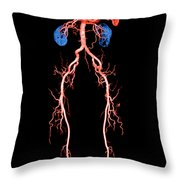 Ct Angiogram Of Abdomen And Legs Throw Pillow
