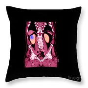Ct Reconstruction Of Renal Cancer Throw Pillow