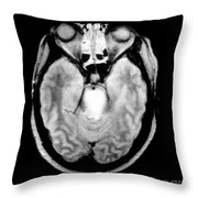 Mri Of Brainstem Glioma Throw Pillow