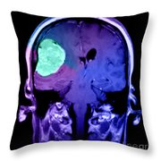 Right Sided Meningioma Throw Pillow