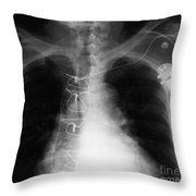 X-ray Of Implanted Defibulator Throw Pillow