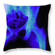 X-ray Of The Hip Throw Pillow