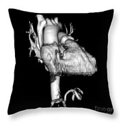 3d Ct Reconstruction Of Heart Throw Pillow