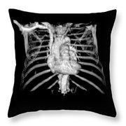 3d Cta Of Heart And Chest Throw Pillow by Medical Body Scans
