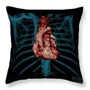 3d Ct Reconstruction Of Heart Throw Pillow