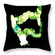 Barium Enema Showing Diverticulosis Throw Pillow