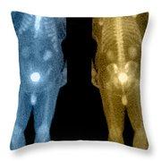 Bone Scan Throw Pillow