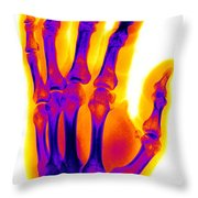 Finger Fracture Throw Pillow