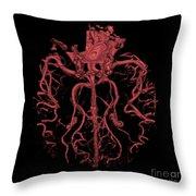 Intracranial Ct Angiogram Throw Pillow